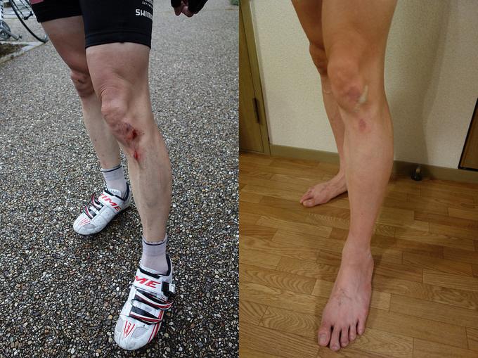 ZUZIE's blog | 擦過傷は湿潤療...